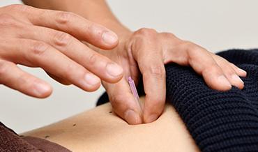 背中への鍼治療