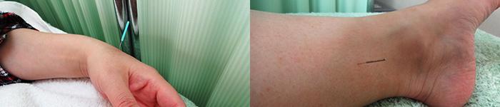 皮膚科疾患
