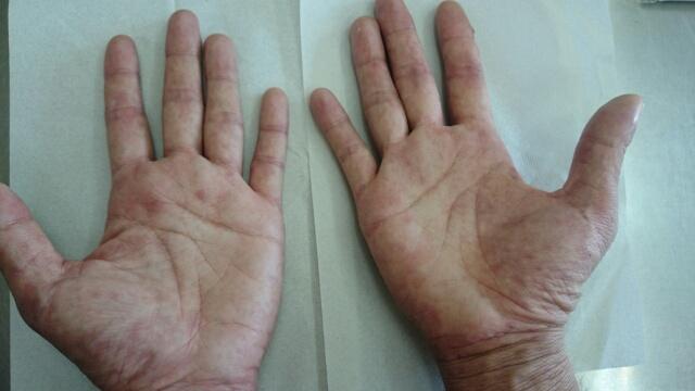 カンジタ皮膚炎の改善例