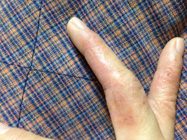 主婦手湿疹の改善例
